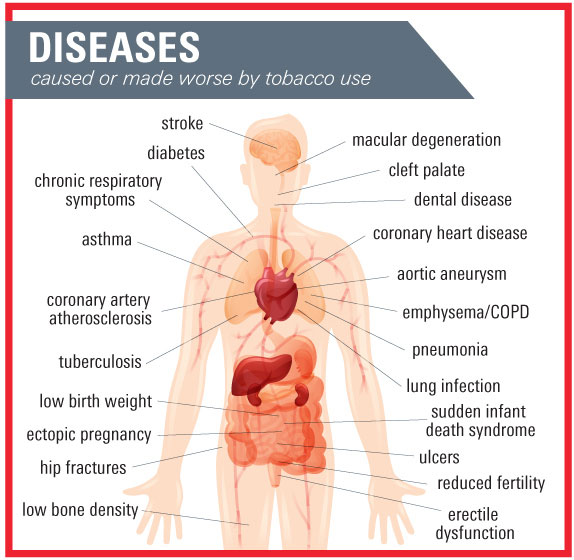 diseases Autoimmune diseases are where your immune system attacks healthy cells in your body by mistake learn about the symptoms, tests, and treatments.