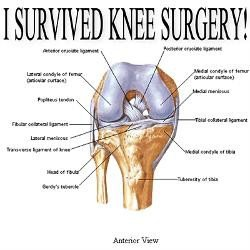 Quotes About Knee Replacement 39 Quotes