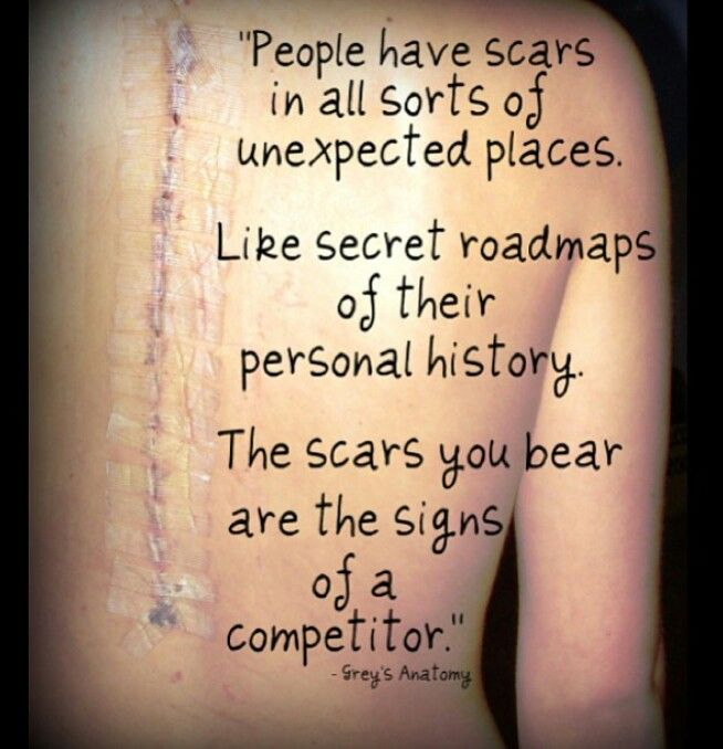 Quotes About Scars From Surgery 21 Quotes