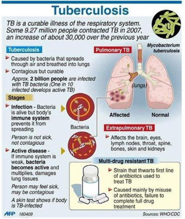 tuberculosis and body The evidence behind the strong correlation between reactivation of tuberculosis (tb) and low body mass index (bmi) was reviewed this strong association between tb and bmi occurred only with.