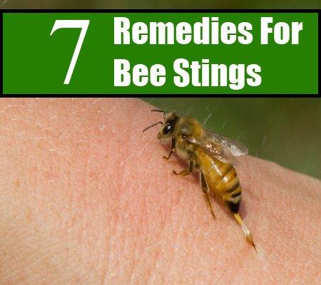 Multiple bee stings