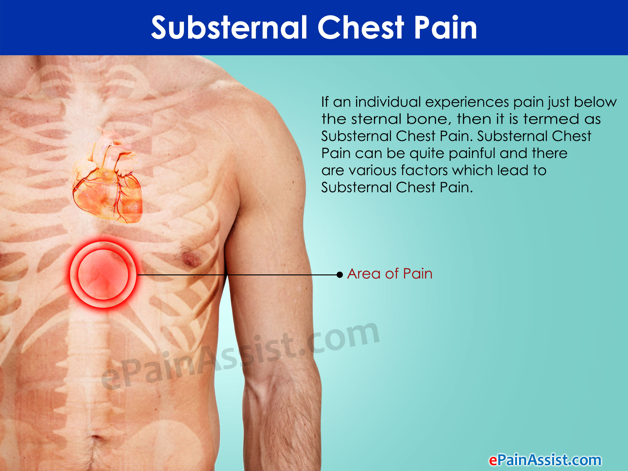 Causes of chest pain in older adults