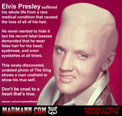 Elvis Presley suffered 