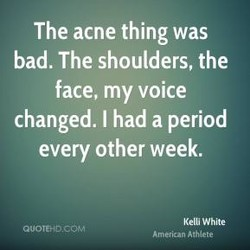 The acne thing was 