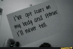 I've got Scars on 