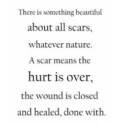 There is something beautiful 