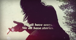 have scars, 