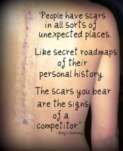 •people have Scars 