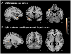 A left temporopolar cortex 