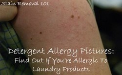 stain Removal 101 