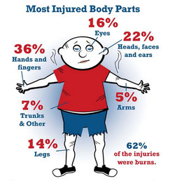 Most Injured Body Parts 