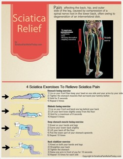 Sciatica 
