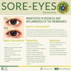 SORE-EYES@ 