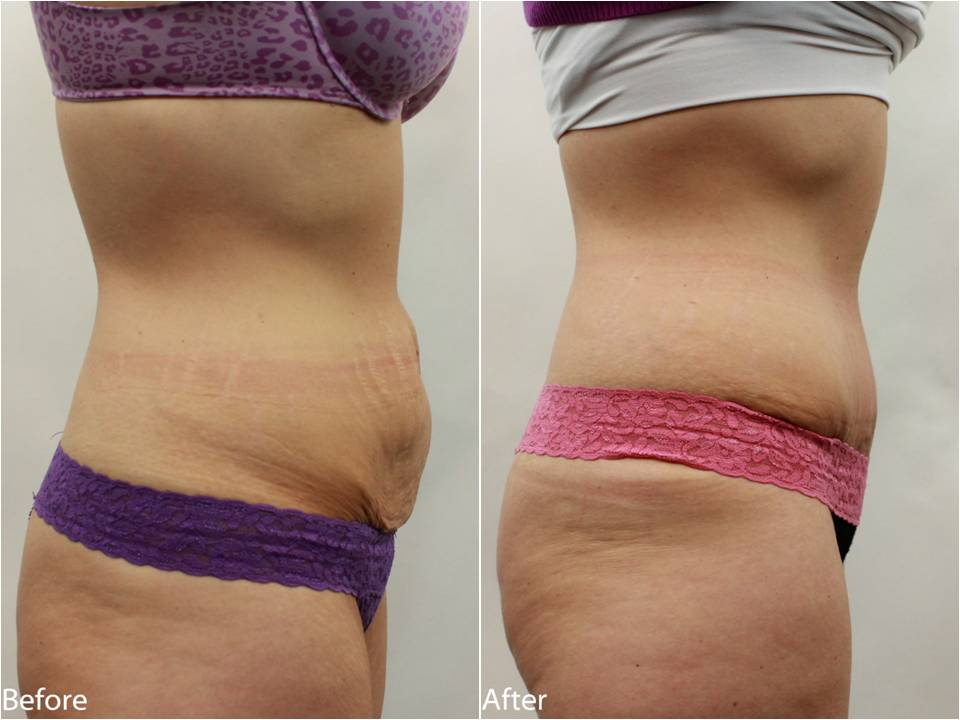 Atlanticare weight loss