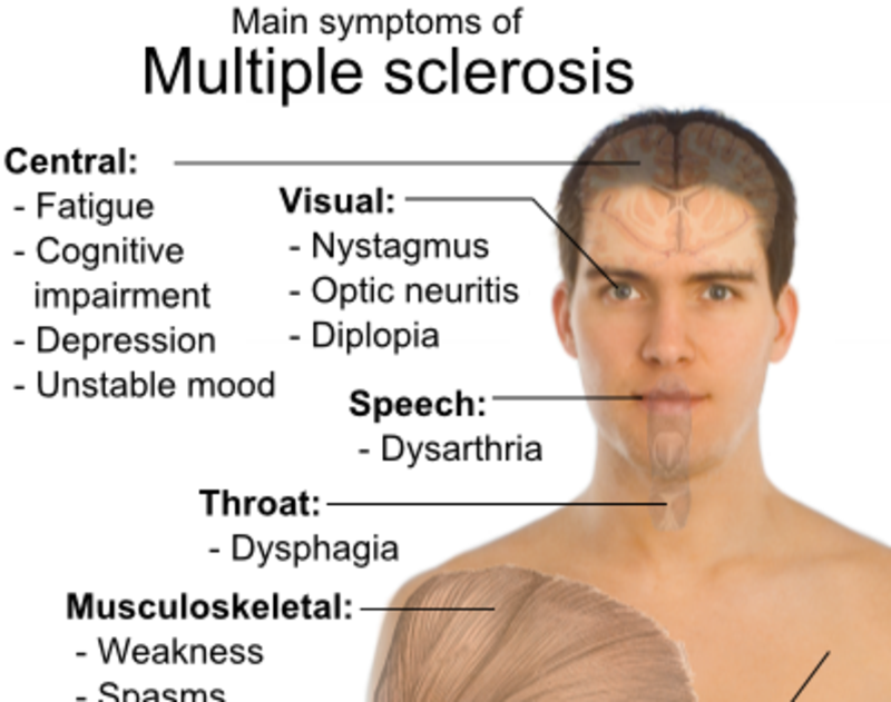facial-weakness-multiple-sclerosis-moving-image-of-sex