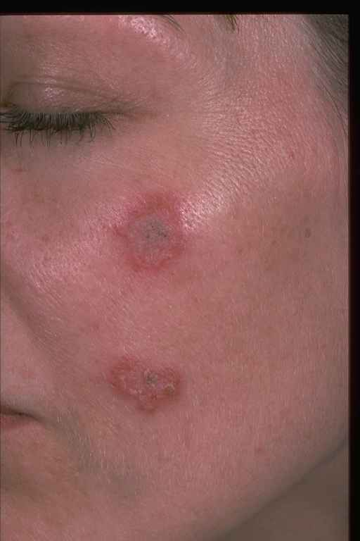 Quotes About Skin Disease  29 Quotes