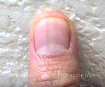 light black line on fingernail - 504×451
