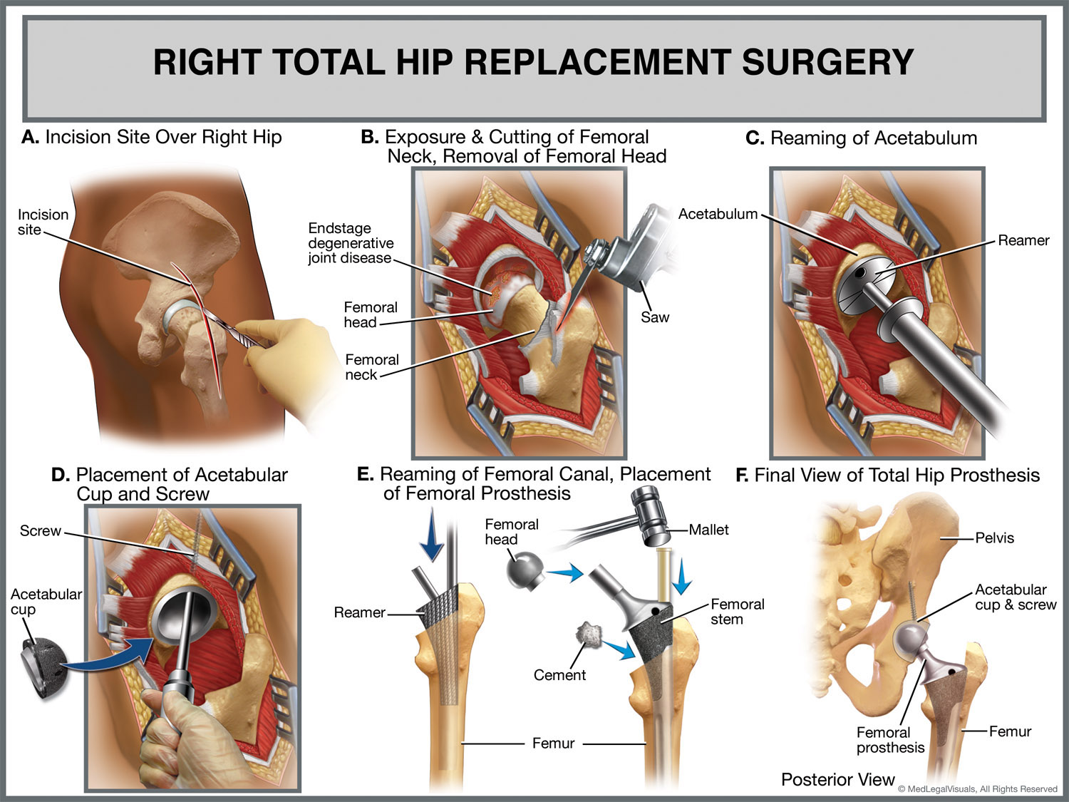 Quotes About Hip Replacement 18 Quotes