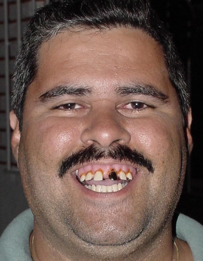 Картинка некрасивых зубов